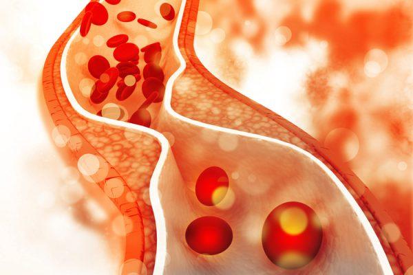 đông trùng hạ thảo làm giảm lượng cholesterol trong máu